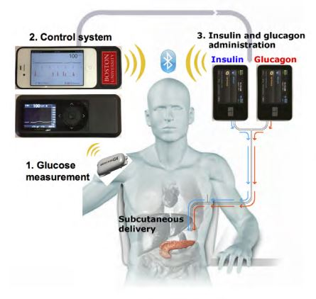 Schematic of the bionic pancreas Image credit: Boston University Dept. of Biomedical Engineering / NEJM