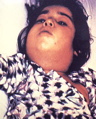 A child with diphtheria with the characteristic swollen neck.  Image credit: CDC Public Health Image Library #5325